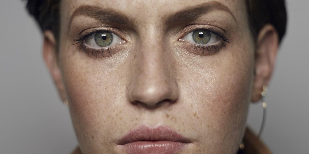 problemas de la piel, ansiedad, estrés