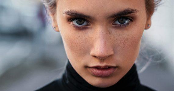 criugias-estéticas-botox-face-lift-bicehctomía